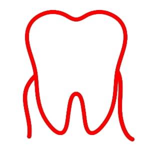 עקירות שיניים